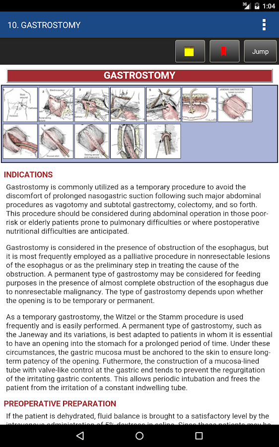 Zollinger's Atlas of Surgery Screenshot 19
