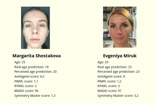 Sampling bias: how a machine-learning beauty contest awarded nearly all prizes to whites