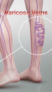 Varicose Veins screenshot for Android
