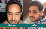 Men Hair Transplant Clinic in India
