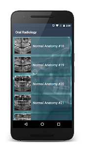 Oral Radiology screenshot for Android