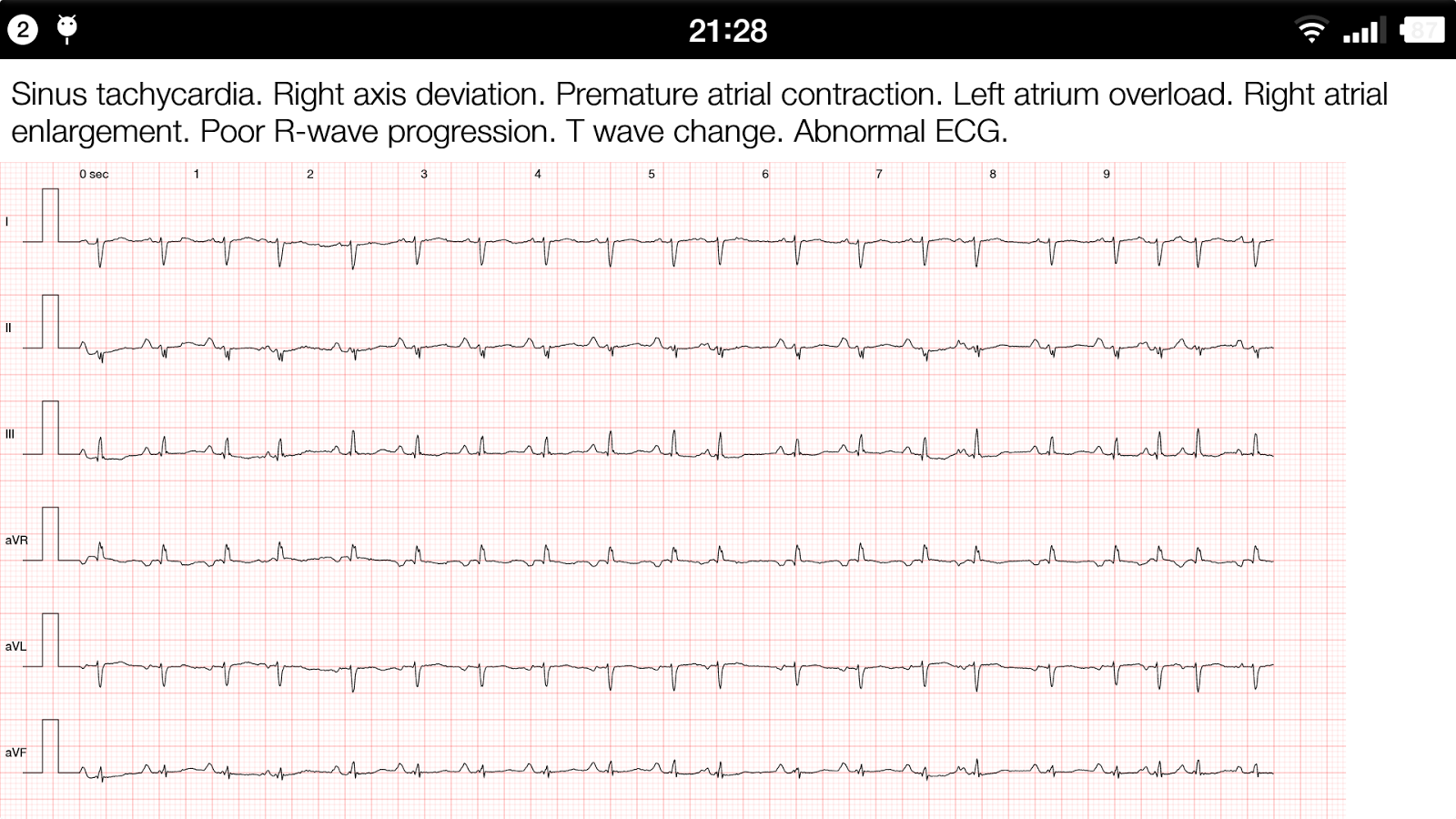 ECG Pro - Cases / Compendiums Screenshot 6