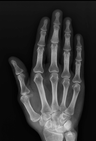 android Xray Scan Blague Screenshot 1