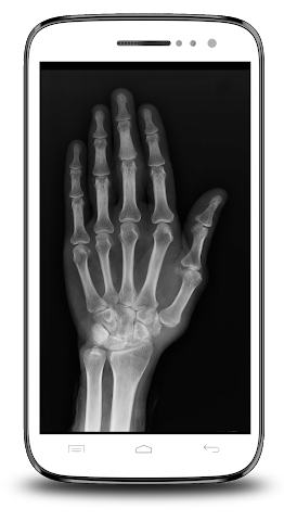 android X-ray Scanner Prank Screenshot 5