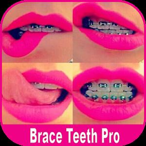 Braces Booth Pro Online PC (Windows / MAC)