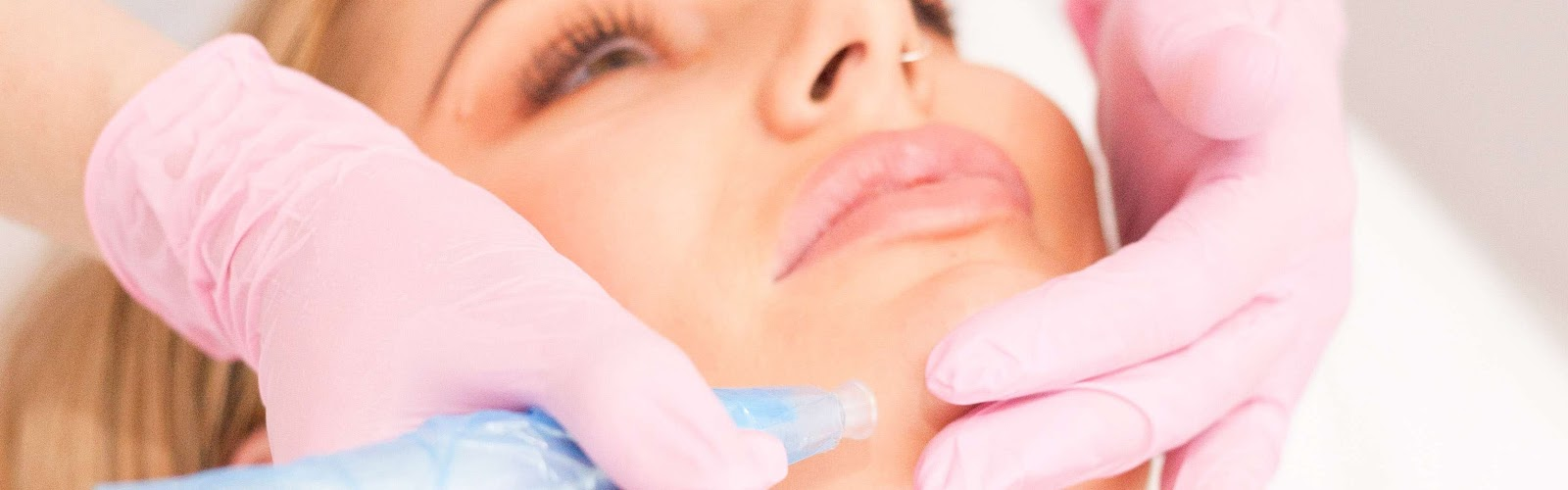 Dermatude Microneedling Treatment