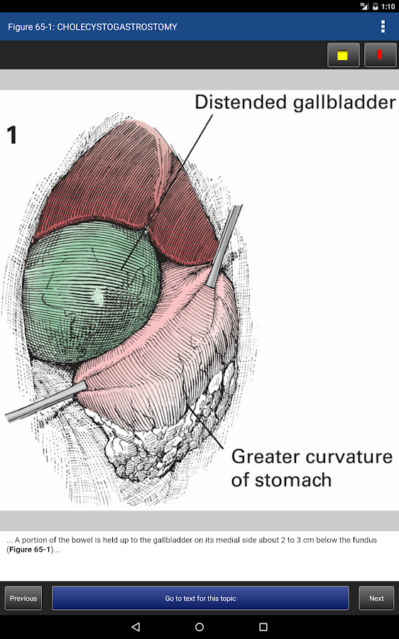 Zollinger's Atlas of Surgery Screenshot 12