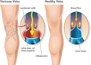 varicose vein treatment Narre Warren