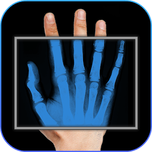 X-Ray Body Scanner Prank For PC