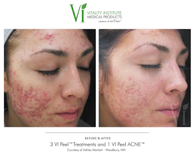 Chemical Peel before and after example