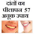 दातो का पीलापन - 57 घरेलू उपाय APK for Bluestacks