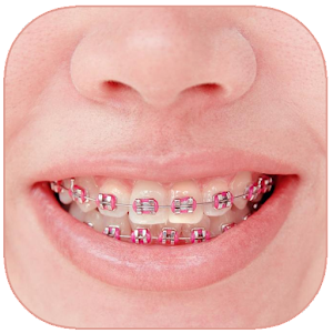 Braces Photo Editor Online PC (Windows / MAC)