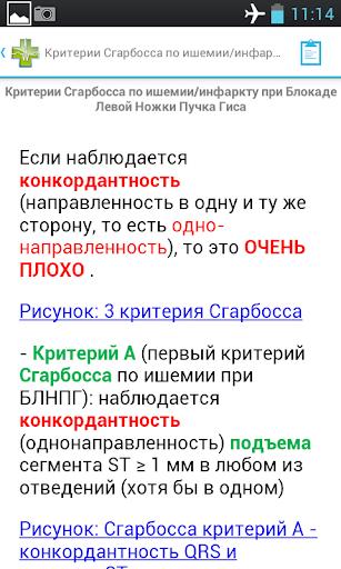 ЭКГ справочник - screenshot