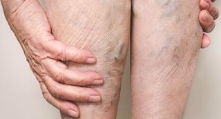 Abnormal vein treatment kew