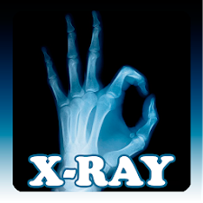 Best X-Ray Scanner