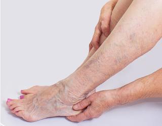 Narre warren varicose treatment