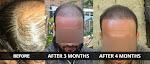 Hair Transplant in Ludhiana - NHT Hair Transplant Clinic