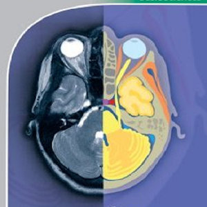 POCKET ATLAS OF CT HEAD