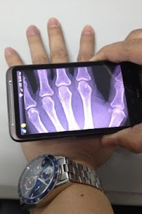 Xray Scanner - screenshot