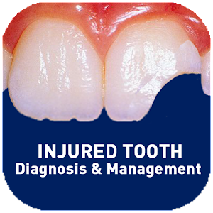 Injured Tooth