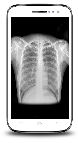 android X-ray Scanner Prank Screenshot 4