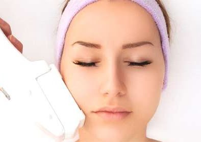 IPL treatment for acne, scarring, hair removal and thread veins