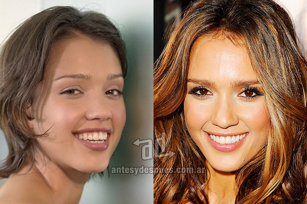 The new smile of Jessica Alba, afterdental surgery
