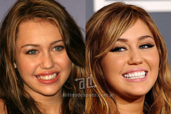 The new smile of Miley Cyrus, afterdental surgery