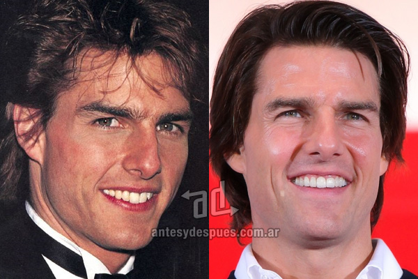 The new smile of Tom Cruise, afterdental surgery