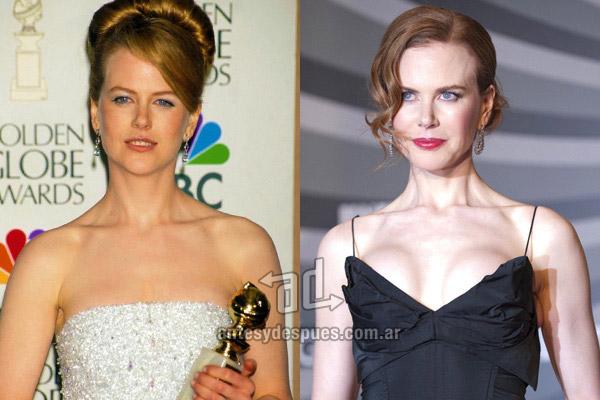 Los pechos operados de Nicole Kidman