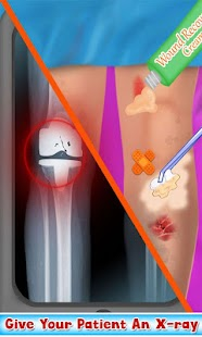 Game Knee Surgery Doctor Operation apk for kindle fire