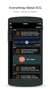 ECG Pro - Cases & Compendiums screenshot for Android