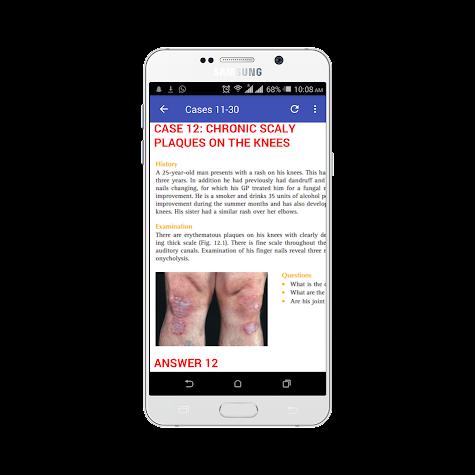 100 Cases In Dermatology Screenshot