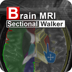 Brain MRI Sectional Wlker
