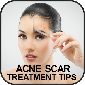 Acne Scar Treatment Tips