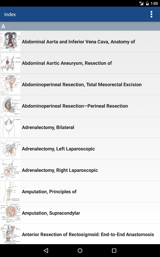 Zollinger's Atlas of Surgery Screenshot 18