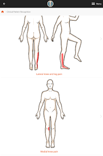 CPR: Knee Pain screenshot for Android