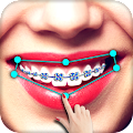 Braces APK for Bluestacks