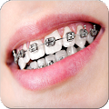 App Real Braces Teeth Booth Pro apk for kindle fire