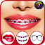 Braces Booth Selfie Camera APK for iPhone