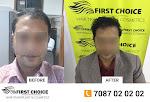 FCHTC Hair Clinic - Hair Transplant in Ludhiana