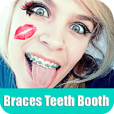 Braces Booth