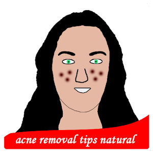 acne removal tips natural For PC (Windows & MAC)