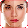Download Blemishes Remover You Makeup APK to PC