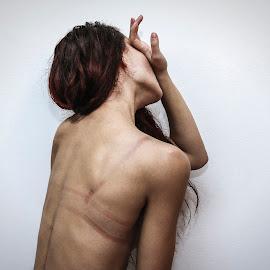 Beauty scars by Tea Jagodic - Digital Art People ( girl, female, redhead, scars, bra, beauty, feminism, skin, nudes )