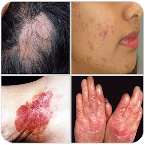 All Skin Diseases and Treatment- A to Z For PC