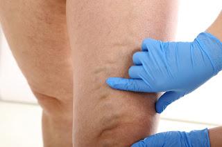 varicose clinic Narre Warren
