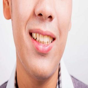 tips sehat dan mudah menjaga gigi putih keluarga For PC / Windows 7/8/10 / Mac – Free Download