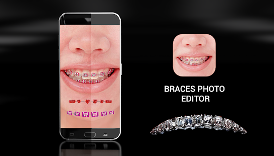 Braces Photo Editor for pc