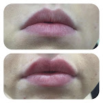Before & After Lips